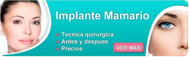 implantes mamarios, protesis, protesis mamarias, levantamiento de senos sin implantes, implantes mamários precios 2014, implantes senos, precios de implantes de senos, implantes precios,